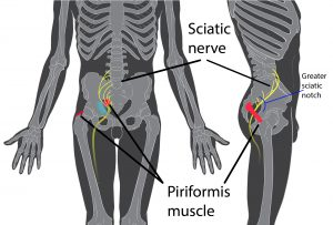 Diagram of piriformis muscle