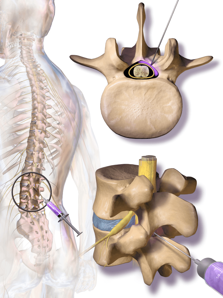 Injections For Sciatic Nerve Pain