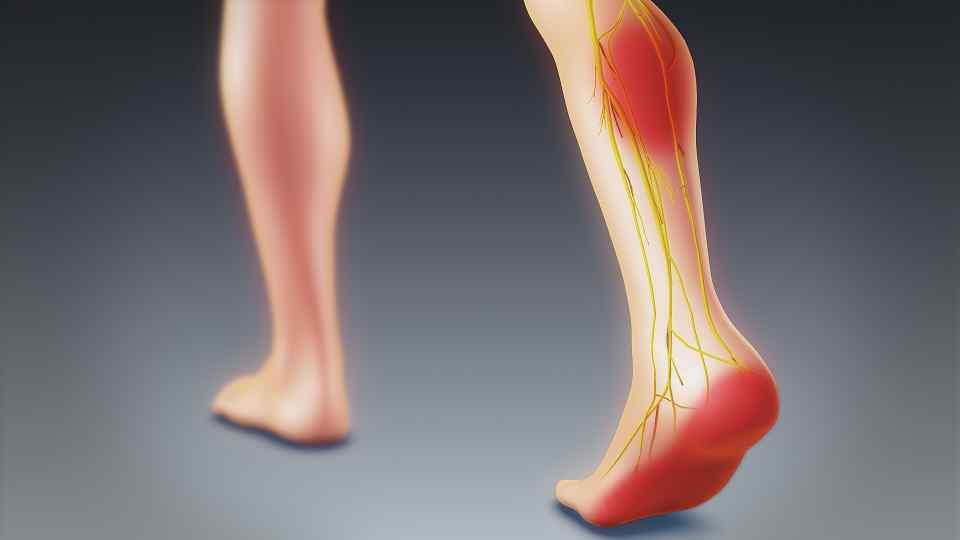 Best Natural Treatment for Sciatica